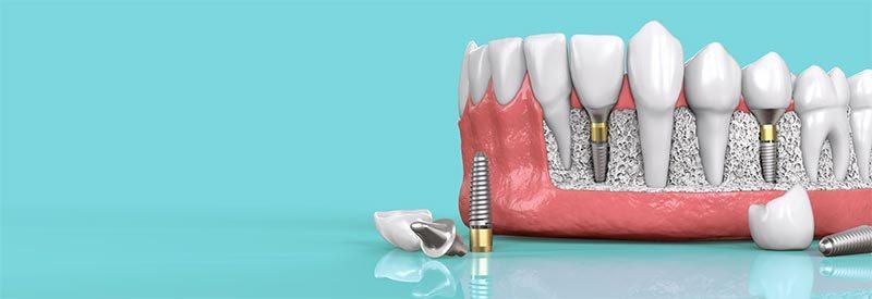 A fogászati implantátumok rejtélyes múltja és fényes jövője